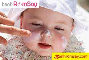 Kem bôi - Phương pháp trị bệnh rôm sảy cho bé