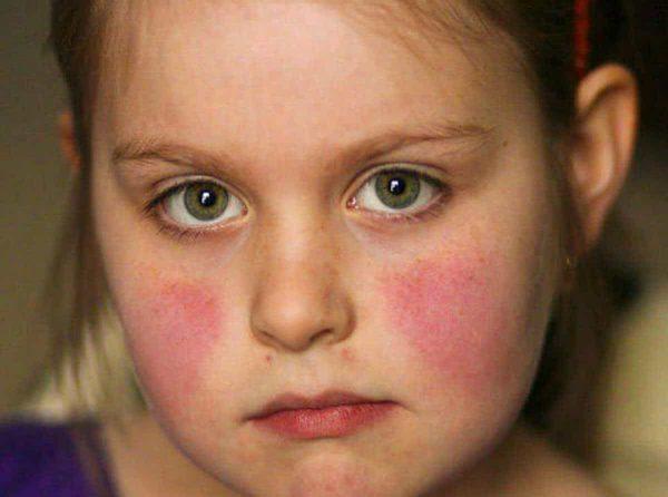 Người bị bệnh lupus rất nhạy bén với ánh sáng