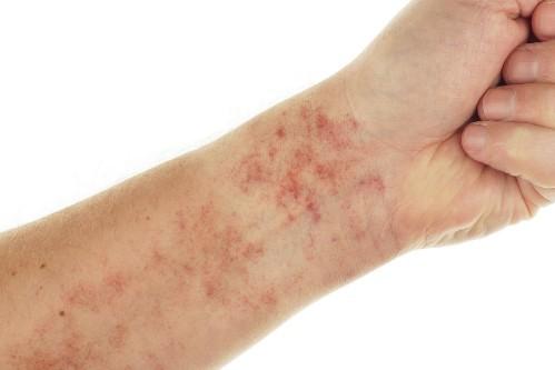 Tác hại dễ nhận thấy nhất của Lupus ban đỏ là những tổn thương ngoài da