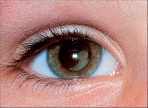 Các triệu chứng thường thấy là đau đầu, động kinh, trầm cảm, rối loạn nhận thức và trí nhớ.